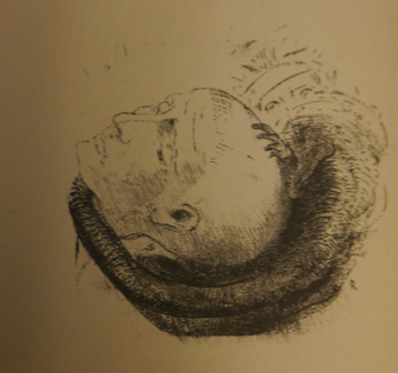 Black-and-white drawing of a head surrounded by a snake