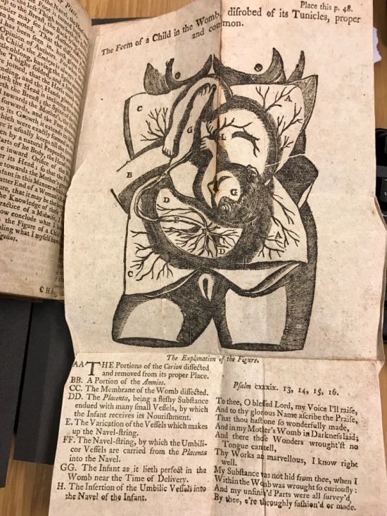 Aristotle's Compleat Master Piece - drawing of child in the womb