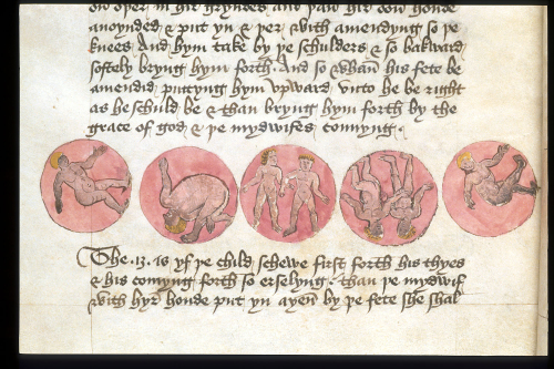 A detail from a medieval gynaecological treatise, showing illustrations of the relative positions of the foetus in the womb.