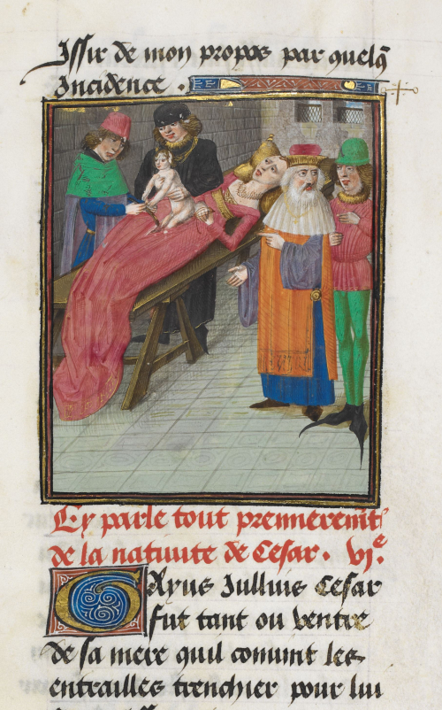 A detail from a medieval manuscript, showing an illustration of the birth of Julius Caesar, with a doctor performing the operation.