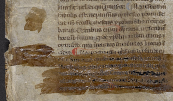 Chemical damage to the manuscript on its lower left page. The damage appears as a shiny brown stain coating the lower lines of text. Underneath can be seen the acidity of the Iron Gall ink having eaten through the parchment in places.