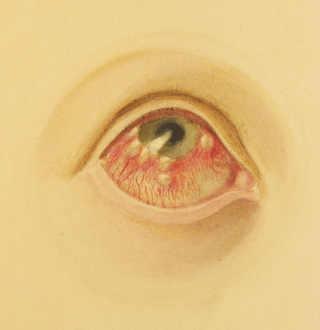 A painting of an eye with round swollen white lesions on the cornea.