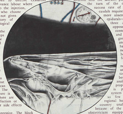 Spare Rib 1972
